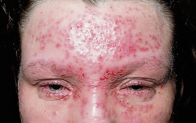 Suprainfectare herpetica in DA