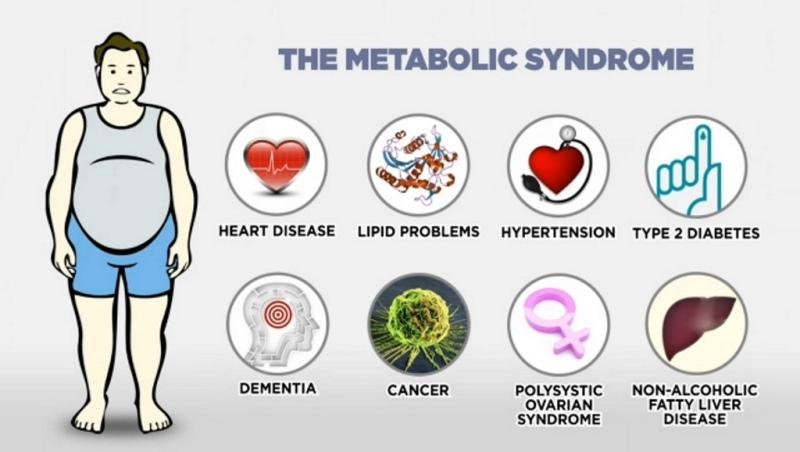 Sindrom Metabolic