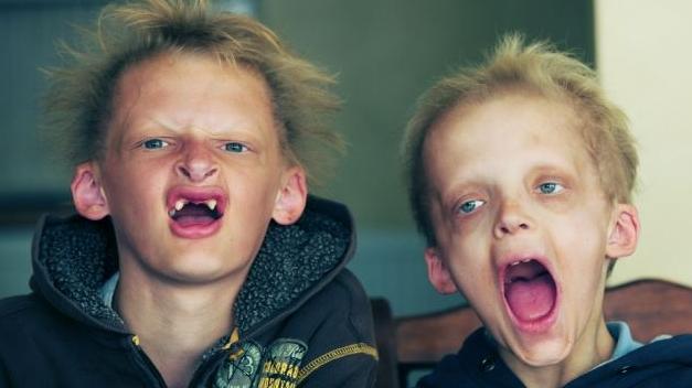 Boala vampirilor