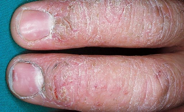 Eczema stadiu cronic