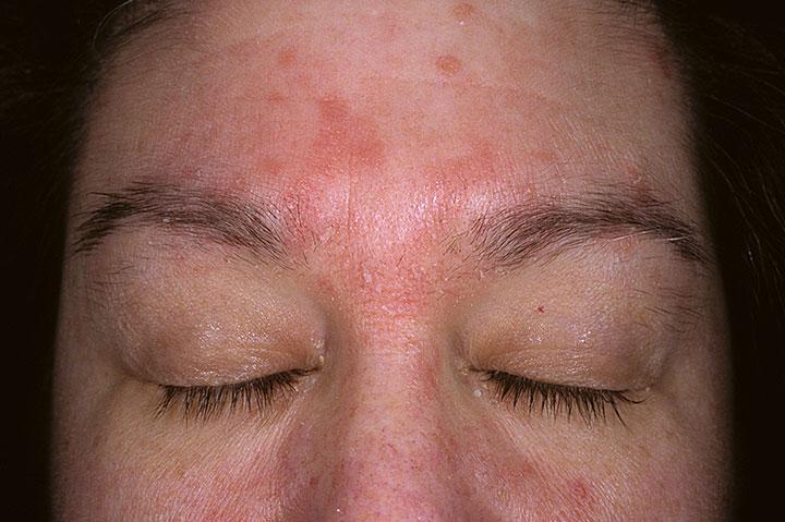 ce inseamna dermatita atopica tratament